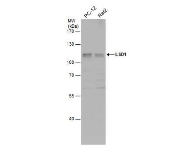 Anti-LSD1 antibody