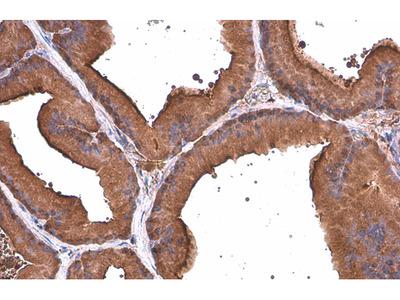 Anti-ALDH1A3 antibody [GT926]