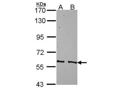 Anti-PPP3CC antibody [N1C1]