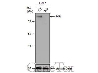 Anti-POR antibody [N1N3]