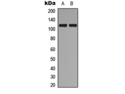 Anti-TOP3A antibody