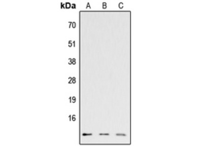 Anti-Eotaxin 3 antibody