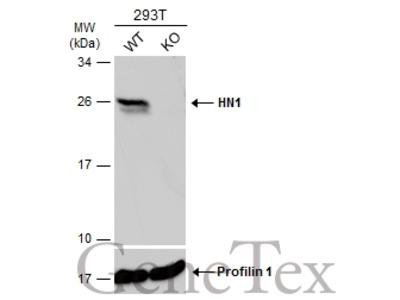Anti-HN1 antibody