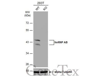 Anti-hnRNP AB antibody