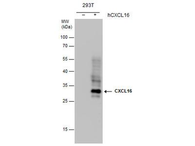Anti-CXCL16 antibody [GT5212]