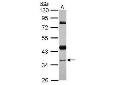 Anti-CCDC94 antibody [N2C3]