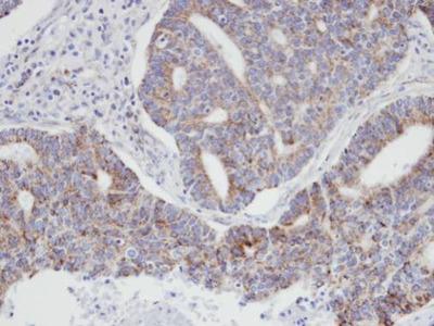 Anti-p21-ARC antibody [N1C3]