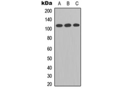 Anti-Enterokinase Light chain antibody