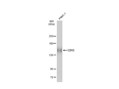 Anti-CD13 antibody