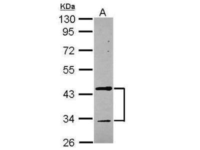 Anti-Tropomodulin 2 antibody [N3C3]