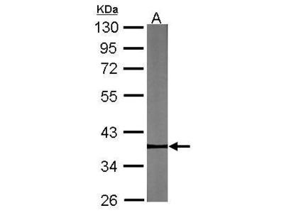 Anti-Pygopus 2 antibody