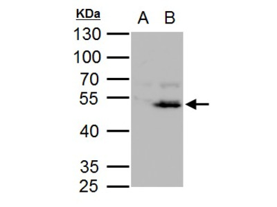 Anti-Chk1 antibody