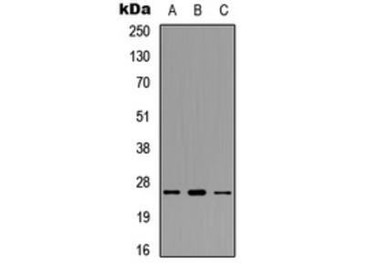 Anti-POLR3G antibody