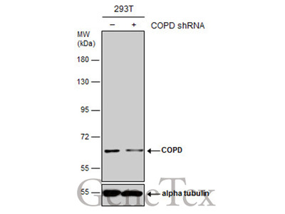 Anti-COPD antibody