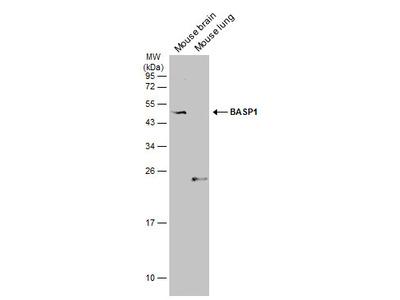 Anti-BASP1 antibody