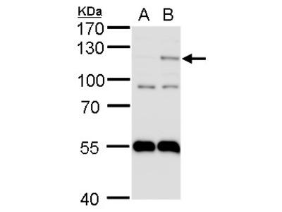 Anti-HIF2 alpha antibody [N1N3]