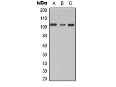 Anti-TBC1D2 antibody