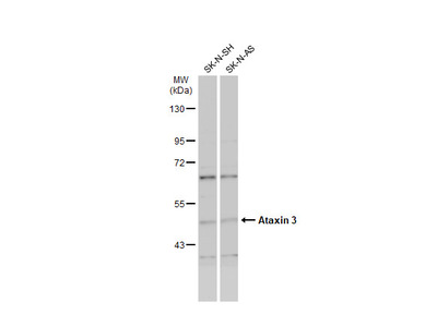 Anti-Ataxin 3 antibody