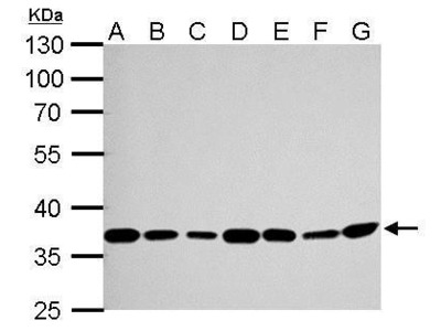Anti-Thymidylate synthase antibody