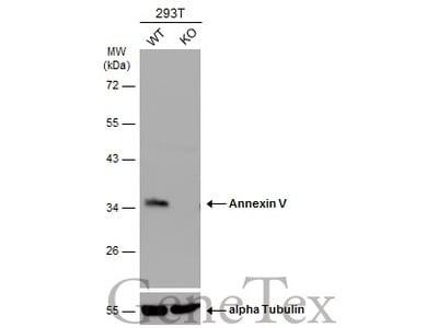 Anti-Annexin V antibody