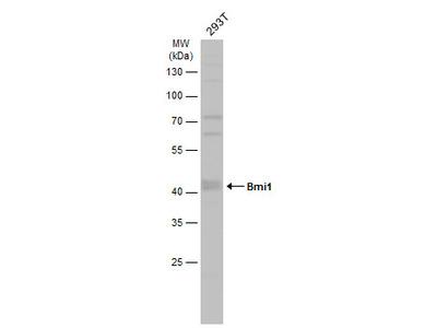 Anti-Bmi1 antibody