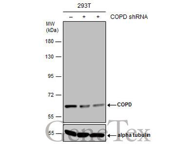 Anti-COPD antibody [GT1318]