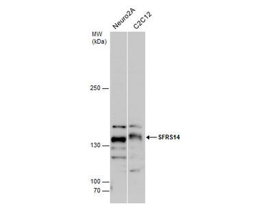 Anti-SFRS14 antibody