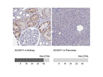 ACAD11 Polyclonal Antibody