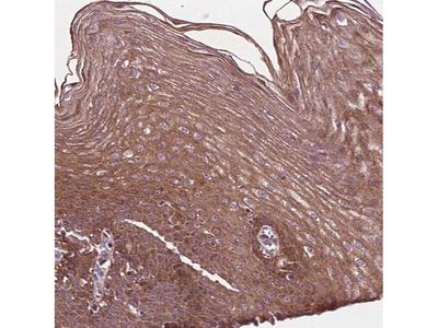 B3GALNT2 Polyclonal Antibody