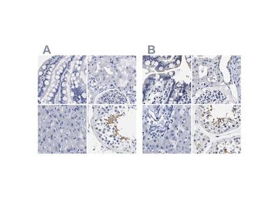 AKAP4 Polyclonal Antibody