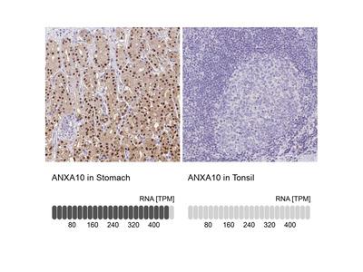 Annexin A10 Polyclonal Antibody
