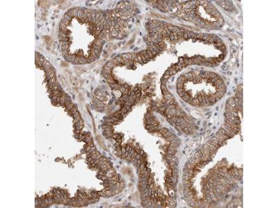 CRISPLD1 Polyclonal Antibody