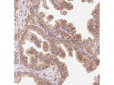 PP14B Polyclonal Antibody