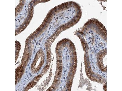NAT15 Polyclonal Antibody