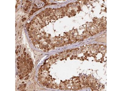 TREML4 Antibody
