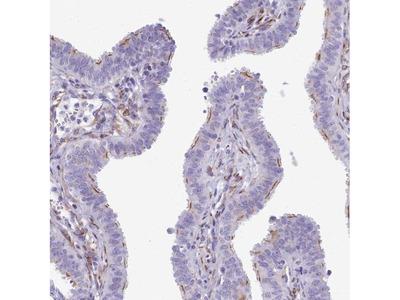 CC2D2A Polyclonal Antibody
