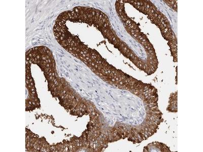 AKNAD1 Polyclonal Antibody