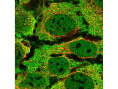 PPP6R3 Polyclonal Antibody