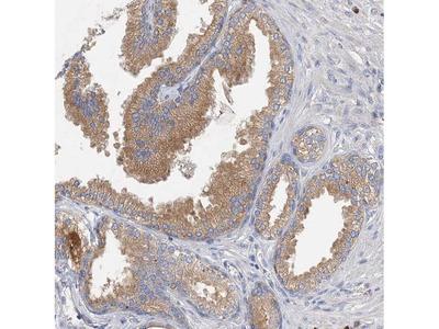 GRINA Polyclonal Antibody