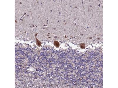 TROAP Polyclonal Antibody