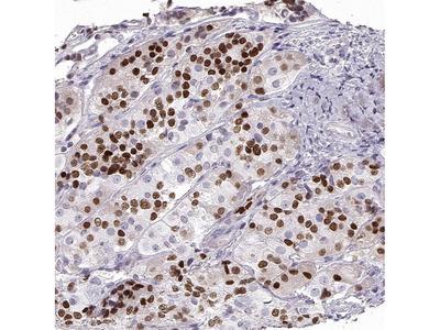 PIT1 Polyclonal Antibody