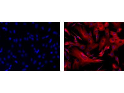 beta-3 Tubulin Monoclonal Antibody (2G10-TB3), eFluor 570, eBioscience™