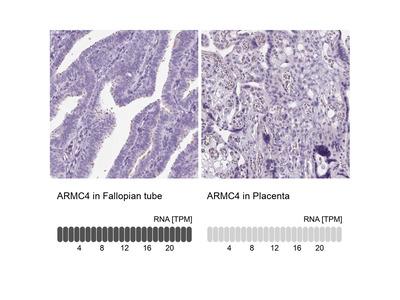 ARMC4 Polyclonal Antibody