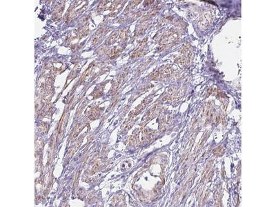 OR5P3 Polyclonal Antibody
