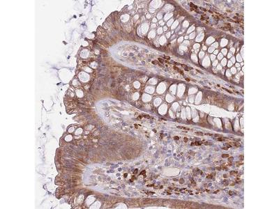 BEX2 Polyclonal Antibody