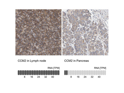 CCM2 Polyclonal Antibody