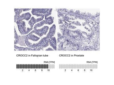 CROCC2 Polyclonal Antibody