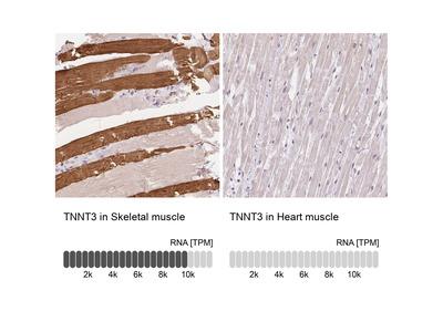 TNNT3 Polyclonal Antibody