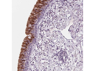 DBX2 Polyclonal Antibody