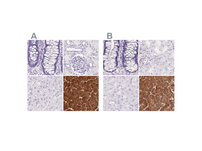 PNLIP Polyclonal Antibody